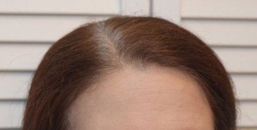 23-day gray growth